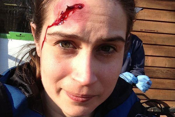 Bleeding, Broken, and Bruised: Wilderness First Aid