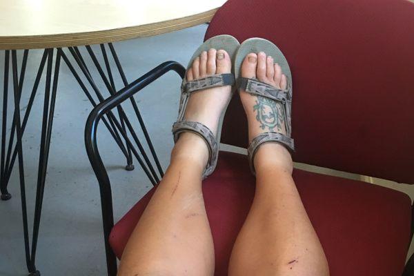 PCT: When Feet Rebel