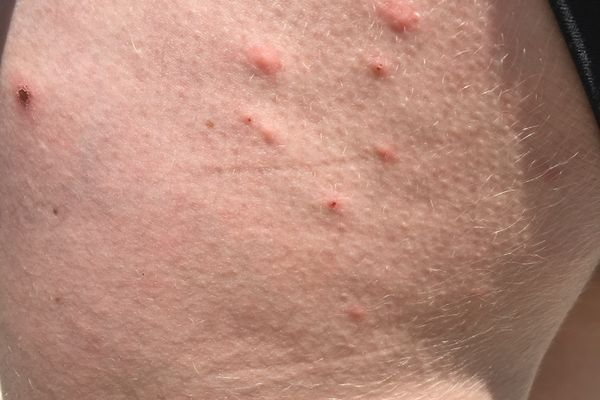 Medical: Scabies Reported Along Southern Virginia AT