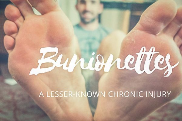 Bunionettes: A Lesser-Known Chronic Injury