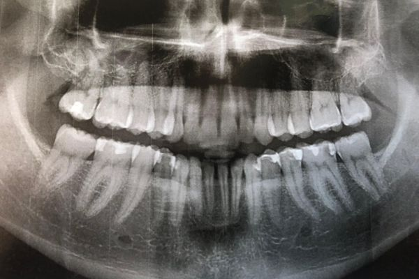 My Dental Demise After the Appalachian Trail: A Cautionary Tale